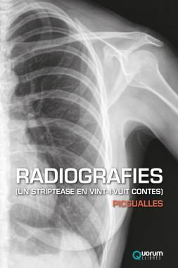 RADIOGRAFIES